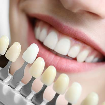 Cal;gary Cosmetic Dentistry | Concept Dentistry | SE Calgary Dentist