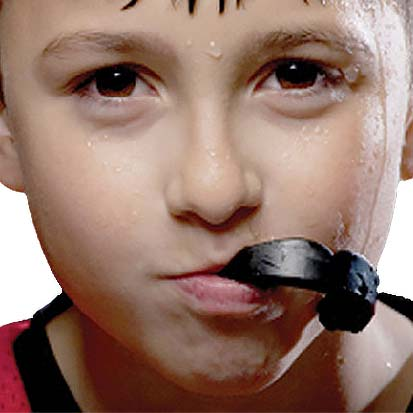 Calgary Sports Mouthguards | Concept Dentistry | SE Calgary Dentist
